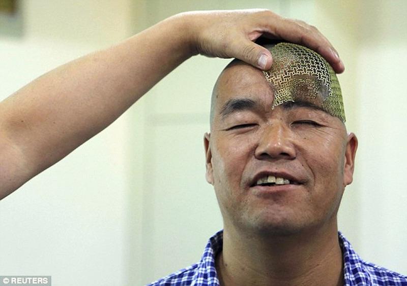 hu-receives-3D-printed-titanium-mesh-implant